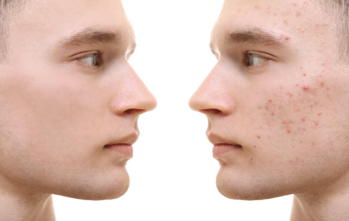 Akne ali mozoljavost