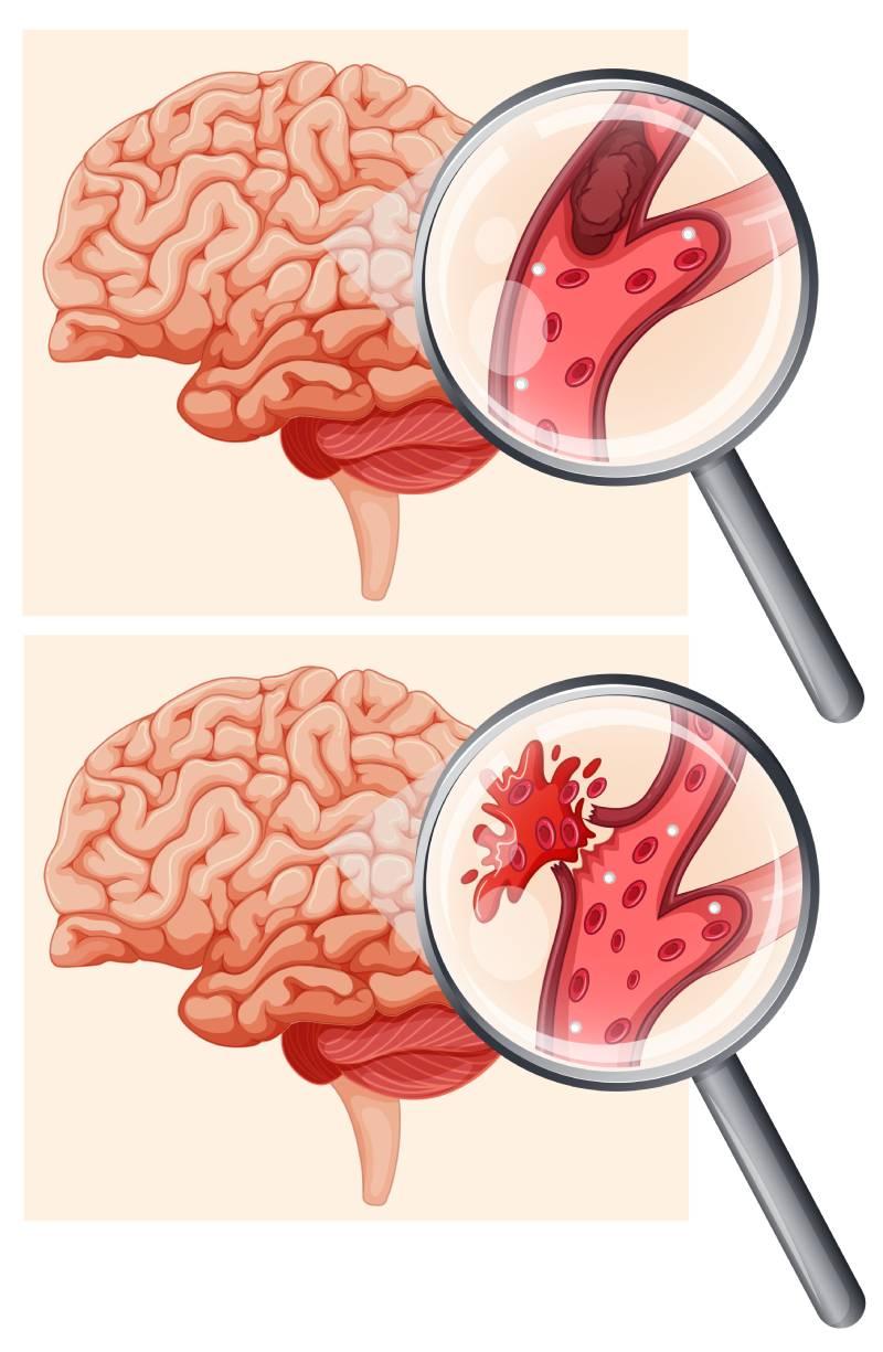 Vrste možganskih kapi
