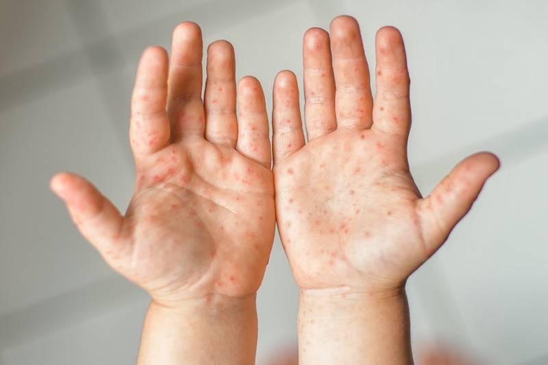 Bolezen-dlani-podplatov-ust