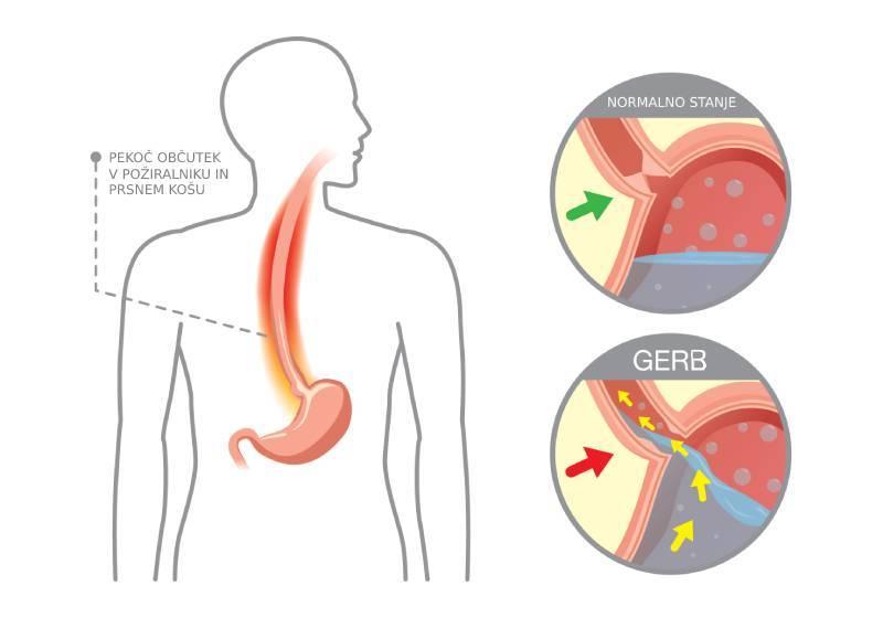 refluksna-bolezen-gerb