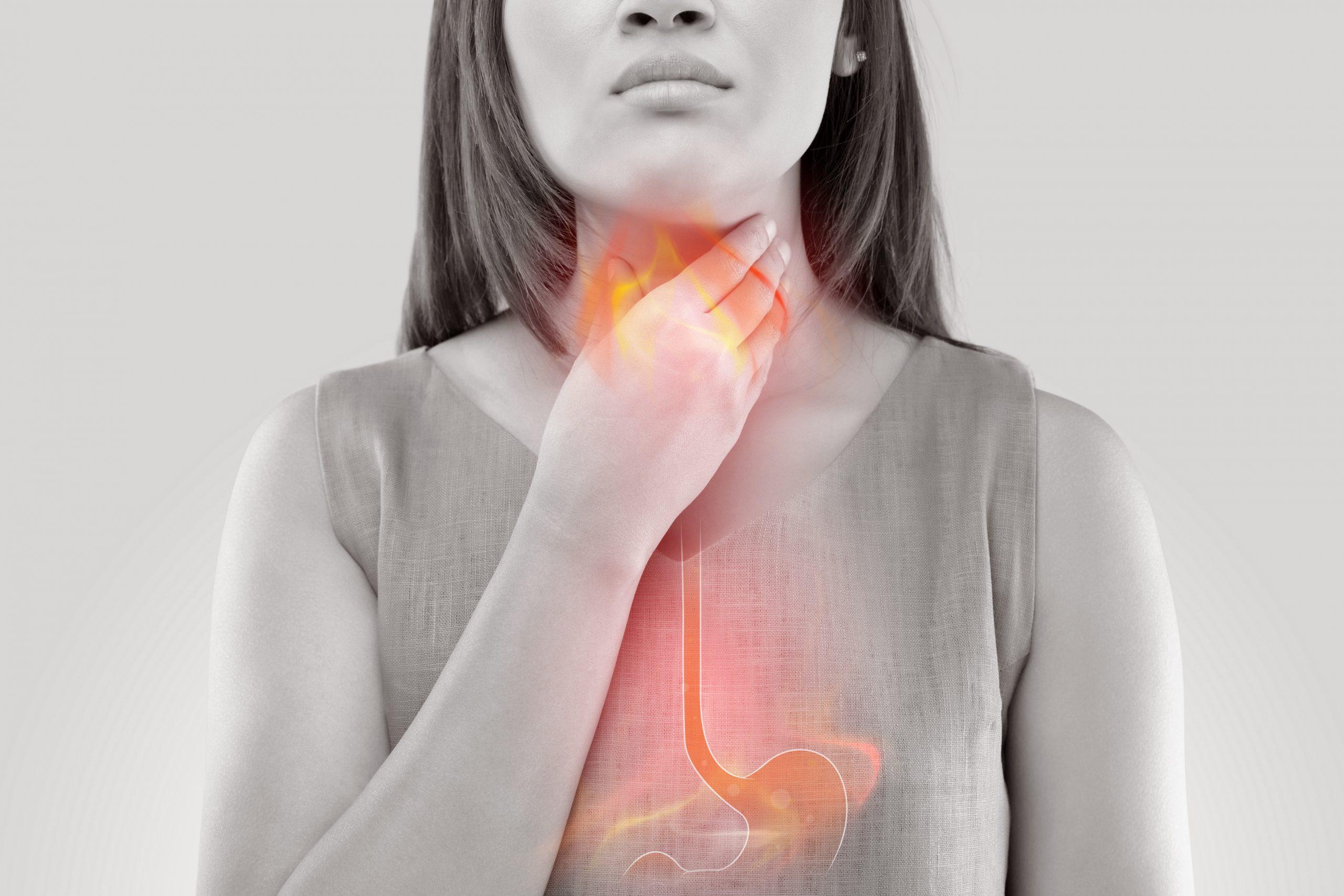 refluksna-bolezen